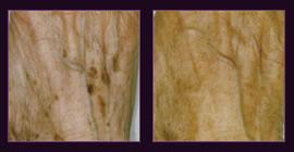 Laser Skin Spot Removal