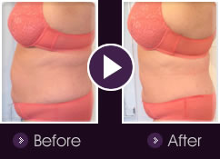 Lipolift pro™ Before & After Images